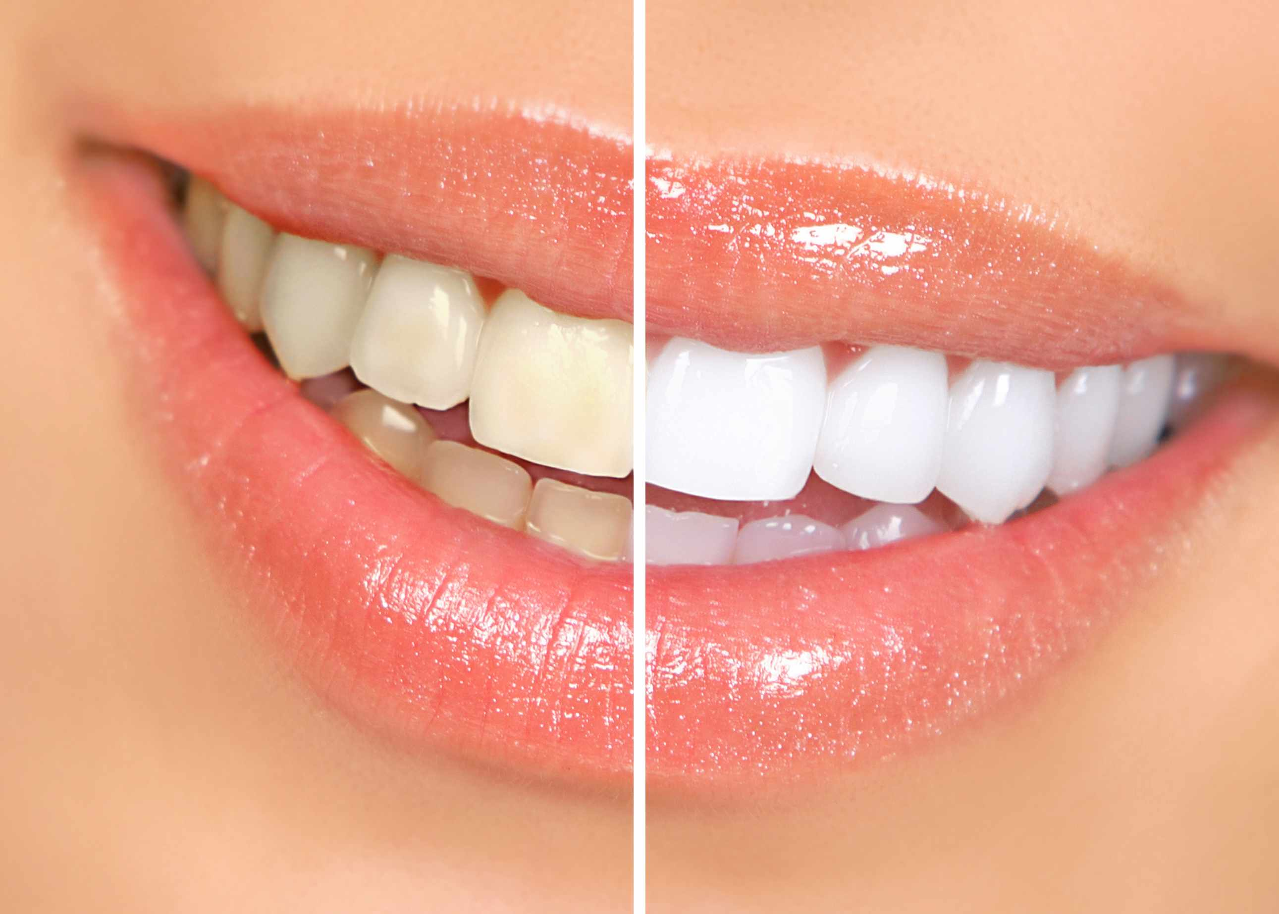 teeth whitening ingredients
