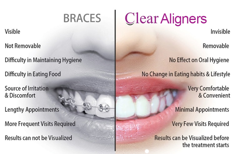 Invisible Teeth Aligners vs Braces - Nicer Smile
